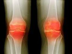 Arthrose et Arthrite - vieillir sans douleur reste possible