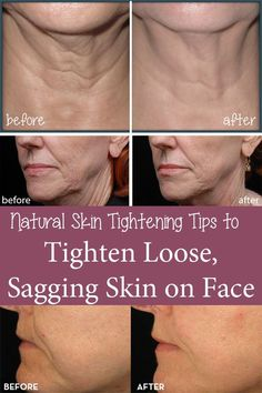 11 Best Natural Skin Tightening Tips to Tighten Loose Sagging Skin on Face As you begin to get older, your skin loses elasticity and behaves just like the rest of the body, making your eyes, mouth, cheeks and neck look tired. Natural Skin Tightening, Natural Skin Care, Natural Beauty, Face Tightening, Organic Beauty, Natural Glow, Skin Firming, Natural Oils, Beauty Care
