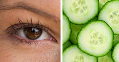 There are various reasons why you get dark circles under the eyes. Here are some common reasons: Genetic, smoking, medication, sun damage, food allergies, nasal congestion, dehydration, fluid retention, iron deficiency, lack of restful sleep and stress. More serious problems could be due to poor adrenal and kidneys functions. Knowing the cause then, …