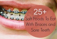 Mouth sores, tender gums, and a sore throat can make eating uncomfortable. And after getting braces, your teeth will be sore which makes chewing and swallowing difficult. One the day you have your braces put on, it is best to avoiding some types of food Soft Food For Braces, Braces Food, Braces Tips, Kids Braces, Dental Braces, Teeth Braces, Foods For Braces, Dental Care, Sore Tooth