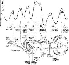 Peat Neurinoma Acustico