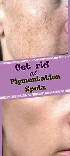how to remove pigmentation spots from your face