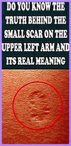 Have you ever wondered what that small scar on the upper left arm is? Well, it is from being vaccinated from small pox. The vaccine wa Holistic Remedies, Holistic Healing, Natural Healing, Health Remedies, Natural Remedies, Medicine Book, Herbal Medicine, Natural Life, Natural Living