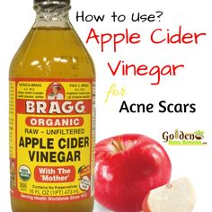 Apple Cider Vinegar For Acne Scars: How To Use Apple Cider Vinegar For Acne Scars
