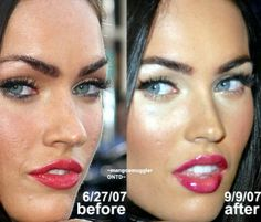 Megan Fox after plastic surgery and after more plastic surgery. Megan Fox after plastic surgery and after more plastic surgery. Megan Fox Plastic Surgery, Celebrity Plastic Surgery, Botox Before And After, Celebrities Before And After, Lipstick For Fair Skin, Botox Injections, Lip Fillers, Airbrush Makeup, Beauty