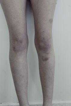 leg bruises tumblr - photo #14