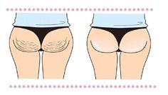 Firm butt