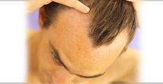Provillus Hair Loss Treatment for Men