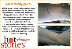 One Week, I Fall, Health And Beauty, Burns, Independent Consultant, Tips, Beauty Products, Beautiful, Cosmetics
