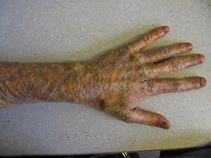 Gelatin recipe for brush on Zombie skin.