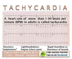 Inappropriate Sinus Tachycardia.... I'm dealing with it