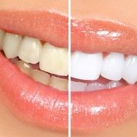 15 Natural Ways To Whiten Your Teeth