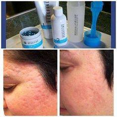 Know anyone with acne scarring?  These results achieved after four weeks of treatment with REDEFINE regimen and AMP MD system, derma roller.  http://karendrinkard.myrandf.com or karen@karendrinkardskincare.com