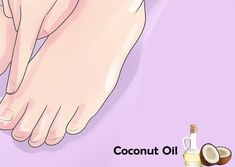 14 Home Remedies To Fight Athlete's Foot Skin Rash Causes, Athlete's Foot, Home Remedies, Home Health Remedies, Natural Home Remedies