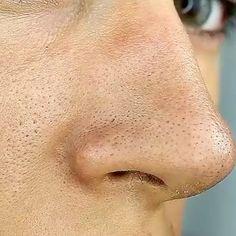 Skin Care Acne Blackheads It Works Ideas Beauty Secrets, Diy Beauty, Beauty Skin, Beauty Hacks Diy, Beauty Tips And Tricks, Beauty Tips For Skin, Natural Beauty Tips, Beauty Art, Beauty Ideas