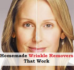 Think, that phoenix facial line removal