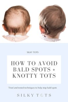 Top 5 Ways to Avoid Baby Bald Spots Baby Life Hacks, Bald Spot, Natural Baby, Natural Oils, Baby Care Tips, Baby Health, Everything Baby, Baby Needs, Baby Time