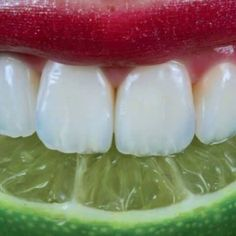 Eating limes or lemons is very good for you since they are both a great source of citric acid but it can also wear away the enamel on your teeth.  Once the enamel is gone it's gone for good because enamel doesn't grow back. So when you do indulge in acidic foods be sure to rinse with water afterward and do not brush your teeth for at least 20 minutes: Always brush your teeth with a fluoridated toothpaste twice a day and floss before you go to bed.
