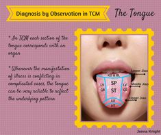Diagnosis by Observation of the Tongue in TCM therapy Acupuncture Points, Acupressure Points, Alternative Health, Alternative Medicine, Tongue Health, Healing Codes, Chinese Herbs, Health Heal, Naturopathy