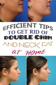 Efficient tips to get rid of double chin and neck fat at home