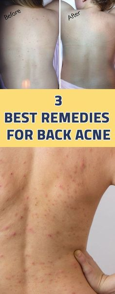 3 Best Remedies For Back Acne. Acne is the uncontrolled occurrence of pimples on the skin and it can appear on any part of the body. Most common acne after face acne is back acne. Body Acne, Acne Skin, Acne Scars, Oily Skin, Skin Oil, Acne Face, Back Acne Remedies, Natural Acne Remedies, Pimples Remedies