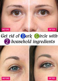 Get rid of Dark Circle with 2 household ingredients