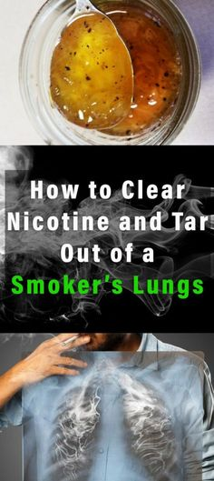 How to Clear Nicotine and Tar Out of a Smoker's Lungs #smoke #nicotine #health #kidney #fitness #beauty #diy