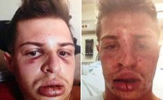 Pics: Gay man kisses his boyfriend in front of a homophobe and gets badly beaten