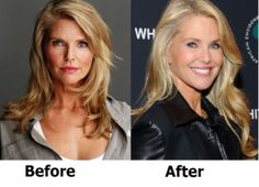 Christie brinkley plastic surgery that would
