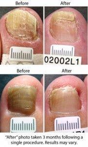 nail fungus treatment that works