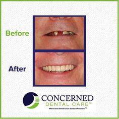 At Concerned Dental Care, we work hard to get you your beautiful smile back! #NYCdentists #dentalcare #oralhealth #dentalimplants #dentalcrowns #dentalbonding #dentalsealants #dentures #veneers #toothfillings #teethwhitening #dentalservices #dentalhygiene #smile