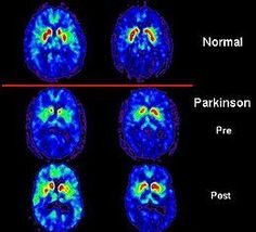 New research on #Parkinson's disease via Nature Genetics and 23andMe.