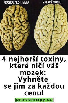 4 nejhorší toxiny, které ničí váš mozek: Vyhněte se jim za každou cenu! Detox, Health, Salud, Health Care, Healthy