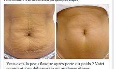 La couche du ventre tombant est le problème des personnes qui, après avoir perdu du poids, se retrouvent avec un ventre moulu et terriblement relâché.Le v