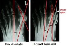 X-ray showing the effect of wearing bunion splints.  You can see how the angles of the toe are improved