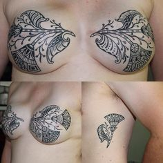 We all have scars in different places. This beautiful tattoo covers mastectomy and drain scars. www.p.ink.org mastectomy tattoo, scar coverage