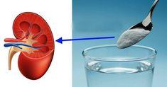Ledviny patří mezi nejdůležitější orgány lidského těla.Proto bychom se o ně měli dobře starat. Medicínští experti uvádějí, že ledviny každý den přefiltrují 120 až 150 litrů krve, vyprodukují 1 až 2 litry moči a odfiltrují z krve odpadní látky, které odvedou ven z těla. Ledviny v lidském těle vykonávají řadu funkcí: brání hromadění odpadních látek […] The post Toto je jediná věc, kterou potřebujete na vyléčení nemocných ledvin appeared first on Příroda je lék. Colon Cleanse Diet, Detox Your Body, Venus, Diy And Crafts, Make It Yourself, Tableware, Health, Fitness, Baking Soda