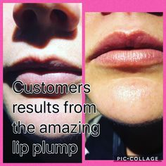 Lip Plumper, Good Skin, Lips, Good Things, Amazing, Summer, Summer Time