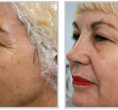 Tattoo Removal Age Spots Find out about age spot reduction solutions.