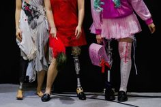 Women wearing prosthetic legs participate in a public photo session at the Hasselblad and Profoto booth, during the CP+ camera and imaging equipment trade fair in Yokohama south of Tokyo, February 14, 2015. REUTERS-Thomas Peter