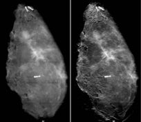 New Method for Diagnosing Breast Cancer   Breast Cancer News   Scoop.it