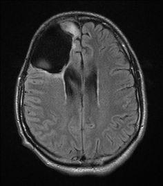 Brain tumor in temporal lobe.