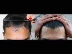 FUE Hair Transplant Result 2500 Grafts Dense Packing – HLC For more information visit our website http://www.hairtransplantcenter-turkey.com/fue-hair-transplant-result-2500-grafts-dense-packing-hlc-2/
