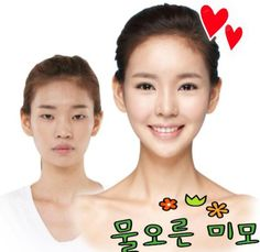 Crazy Before And After Photos Of Korean Plastic Surgery.however, I think this girl was beautiful Crazy Before And After Photos Of Korean Plastic Surgery.however, I think this girl was beautiful already South Korean Plastic Surgery, Plastic Surgery Pictures, 404 Pages, Cosmetic Procedures, Think, Skin Tightening, Korean Skincare, Skin Care Regimen, Anti Aging Skin Care