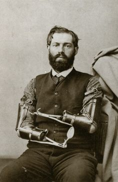 Civil War veteran Samuel Decker built his own prosthetics after losing his arms in combat. Date unknown.