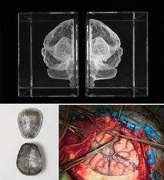 Brains: The mind as matter at the WellcomeCollection