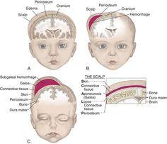 Differences between caput succedaneum, cephalhematoma, and subgaleal hemorrhage.