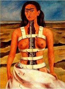 Surrealismo de Frida Kahlo O colete é representado pois ela usou em grande parte de sua vida, devido um problema de coluna
