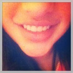 Sonreír la mejor terapia