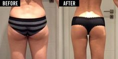 How This Woman Sculpted Her Saggy Work Butt Into an Ass of Steel — Cosmopolitan Combattre La Cellulite, Instant Weight Loss, Slimming Pills, Finally Happy, Speed Up Metabolism, Weight Loss Results, Liposuction, Shark Tank, How To Increase Energy
